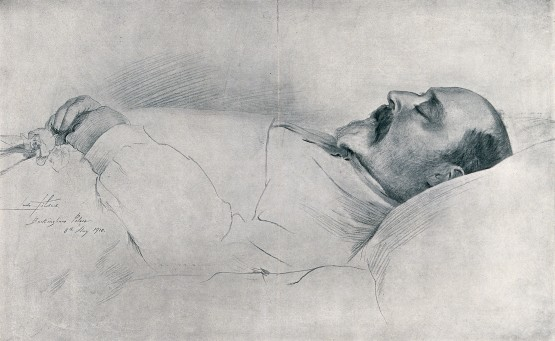 V0042567 King Edward VII on his deathbed in Buckingham Palace in 1910